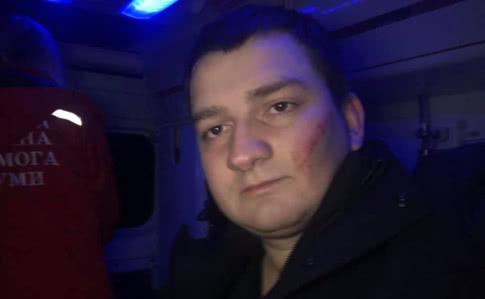 """Невідомі жорстоко побили нардепа від """"Слуги народу"""" (ФОТО)"""