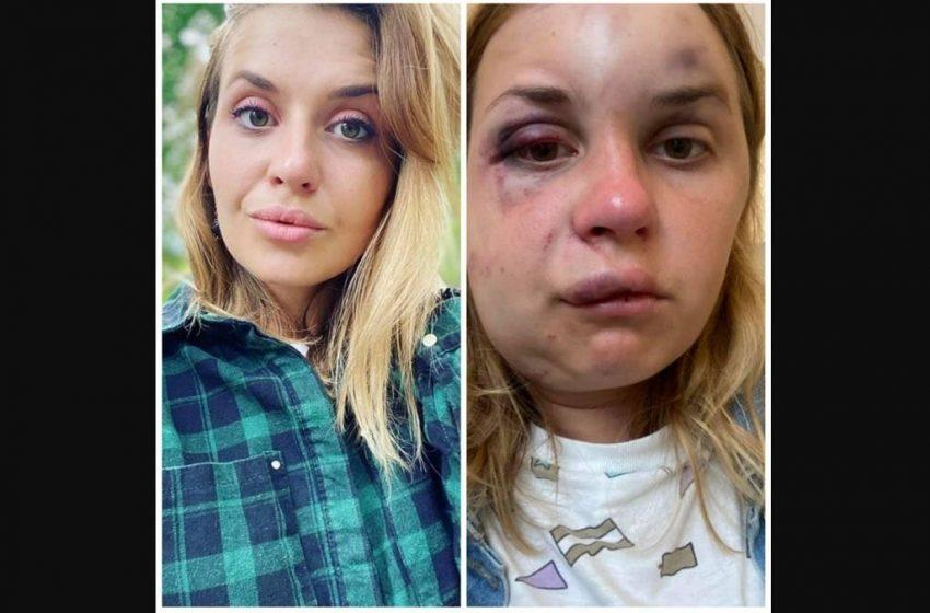 """""""Ніхто не захистив"""": у поїзді """"Маріуполь-Київ"""" збоченець жорстоко побив жінку на очах у сина і намагався її згвалтувати (ФОТО)"""