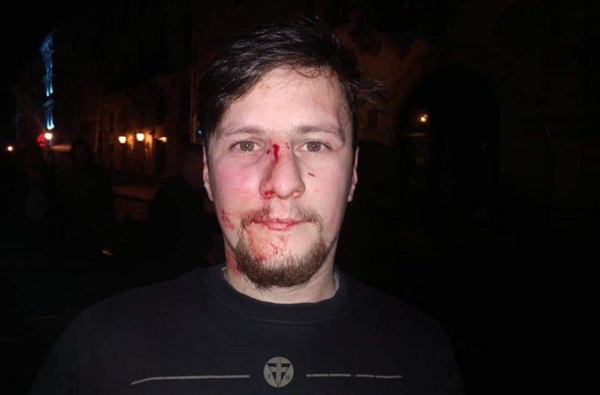 У центрі Львова побили активістів та учасників російсько-української війни (ФОТО)